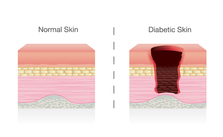 Compare the difference between normal skin and diabetic sores on skin. Illustration about medical. Иллюстрация