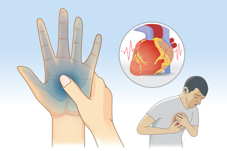 Hand weakness symptom can be warnings signs of a heart attack disease. Illustration about diagnosis and illness. Illustration