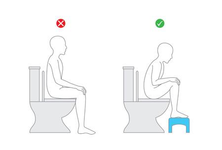 Correcte houding bij het zitten op de wc-stoel voor gezond. Zet voet op badbanken tijdens uitscheiding. Stock Illustratie