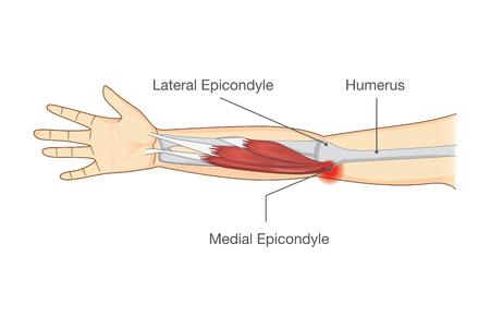 Lesión muscular y desgarro del tendón en el área del codo por torsión y movimientos. Ilustración sobre médicos y ciencia.