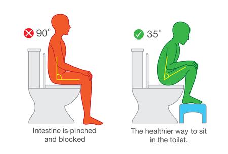 La seduta corretta ottiene l'angolazione corretta del corpo sul sedile del water per un aiuto nell'escrezione. Archivio Fotografico - 79737053