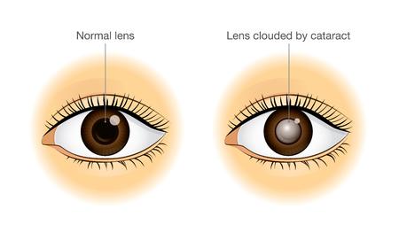 通常の目と白内障によって曇っているレンズの差。健康と視力についての図。