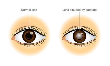 The difference between normal eye and lens clouded by cataract. Illustration about health and eyesight.