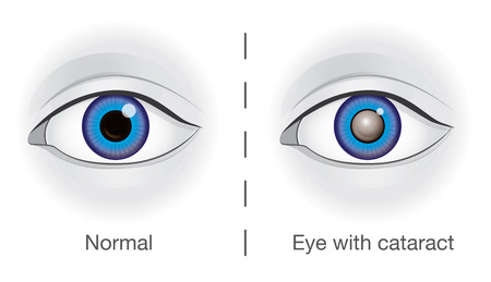 Normal eye and lens clouded by cataract. Illustration about health and eyesight.
