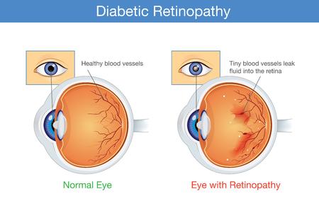 Anatomía del ojo normal y la retinopatía diabética en personas que tienen diabetes, ilustración sobre la salud y la vista. Ilustración de vector