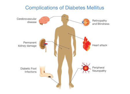 Complications of Diabetes Mellitus in people. Illustration in Infographic style about medical and health.