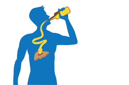 Snake out of alcohol bottle into body to attack liver while people drinking. Illustration about health care. Иллюстрация