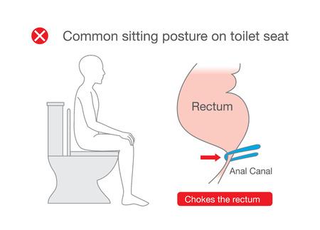 Häufige Körperhaltung beim Sitzen auf der Toilette ist unangenehm im Rektum. Illustration über falsche Position im Lebensstil.