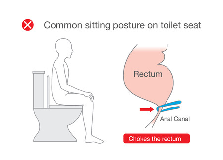 Common posture while sitting on toilet make discomfort at the rectum. Illustration about incorrect position in lifestyle. Vettoriali