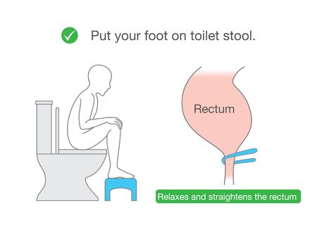 Ponga su pie en pequeños bancos mientras está sentado en el inodoro para relajar los músculos y endereza el recto. Ilustración sobre Postura correcta para saludable.