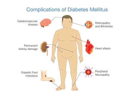 Complications of Diabetes Mellitus in fat people. Illustration in Infographic style about medical and health.