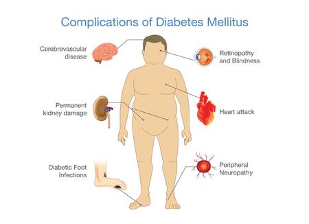 Complicaties van Diabetes Mellitus bij dikke mensen. Illustratie in Infographic-stijl over medisch en gezondheid.