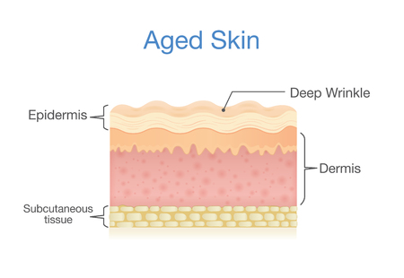 clipart wrinkles: Aged skin layer in 3D vector style. Illustration about health care and beauty. Illustration