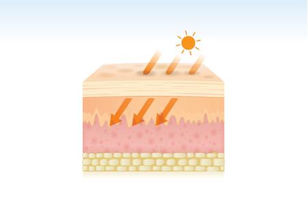 Huid beschadigd door absorptie van energie door UV-stralen. Illustratie over medische en gezondheidszorg.