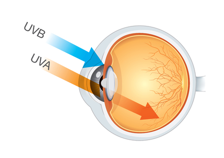 The difference of UVA and UVB from sunlight into eyes.. Illustration about medical and health.