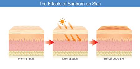 Paso del cambio de la capa de piel humana dañada por la luz del sol. Ilustración sobre cuidado de la salud.