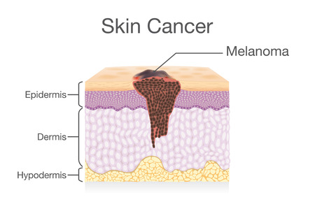 Spreading of Cancer Cell in Human Skin layer. Medical illustration. Illustration