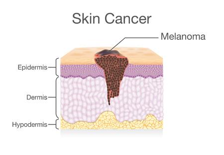 Verspreiding van kankercel in de menselijke huidlaag. Medische illustratie. Stock Illustratie