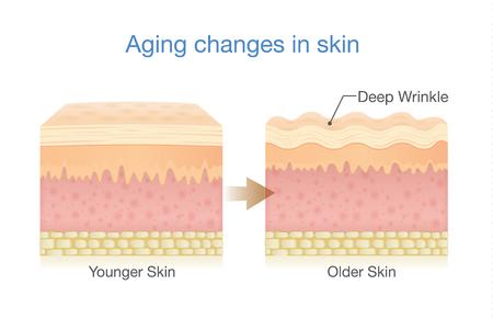 Zmiany starzenia się skóry. Ilustracja o schemacie medycznym i opiece zdrowotnej.