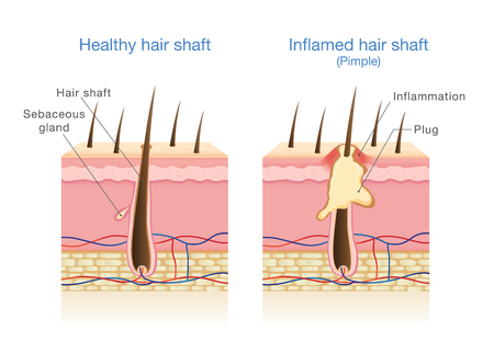 Infection in the hair follicles. Illustration about medical diagram.