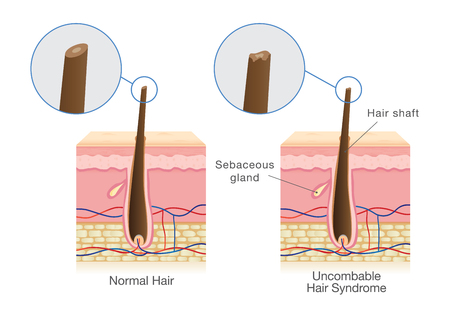 The difference of shaft of normal hair and uncombable hair syndrome. Illustration about medical diagram.