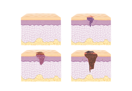malignant growth: Layer of normal Skin and Spreading of Cancer Cell in vector style in collection. Illustration about medical and health.