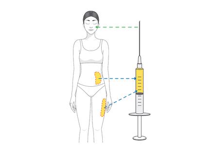뷰티 우먼은 주름 감소를 위해 얼굴에서 엉덩이로 지방을 옮긴다. 성형 수술에 대 한 그림입니다.