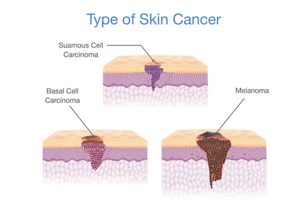 Type of Skin Cancer in 3D vector style. Medical illustration.