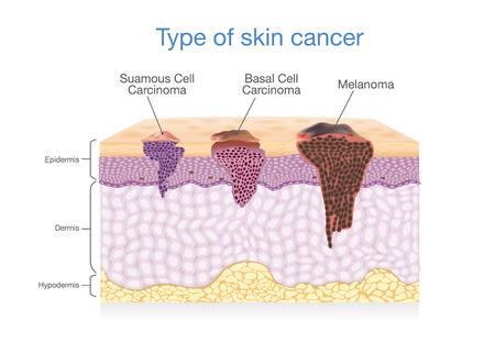 Lo strato della pelle ha 3 tipi di cancro in uno. Illustrazione su Diagramma medico. Archivio Fotografico - 81965444