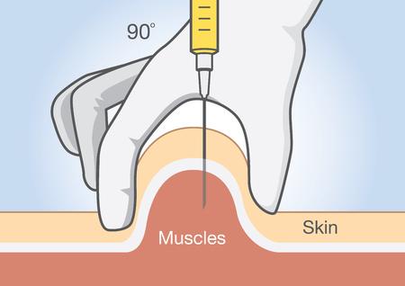 inyeccion intramuscular: Diagrama médico sobre la inserción de medicamentos en el tejido muscular con aguja de inyección.
