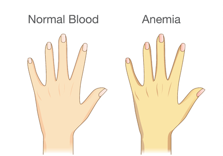 The difference of Anemia people skin and normal people. Illustration about health check up