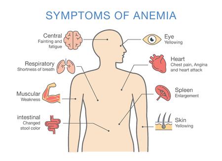 El síntoma más común de anemia. Ilustración sobre diagrama médico para diagnosticar una enfermedad o condición. Ilustración de vector