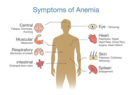 Symptoms common to many types of Anemia. Illustration about medical diagram for diagnose a disease or condition. Illusztráció