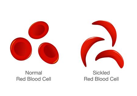 La differenza di globuli rossi normali e cellule falciformi. Illustrazione su medica Vettoriali