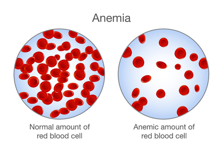 The difference of Anemia amount of red blood cell and normal. Illustration about medical. Vectores