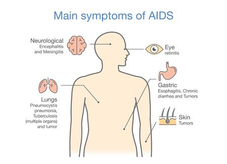 에이즈의 주요 증상에 대한 다이어그램. 의료에 대 한 그림입니다. 일러스트