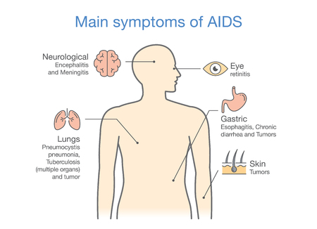 Diagram of Main symptoms of AIDS. illustration about medical.
