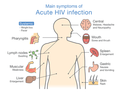 Belangrijkste symptoom van acute hiv-infectie. Illustratie over diagram voor patiënt.