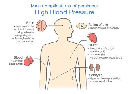 Główne powikłania utrzymującego się wysokiego ciśnienia krwi. Ilustracja o zdrowiu i medycynie.
