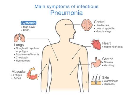 Belangrijkste symptomen van infectieuze Longontsteking. Illustratie over diagram voor gezondheidscontrole omhoog. Vector Illustratie