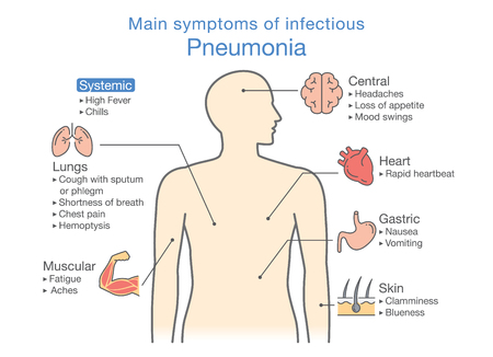 Main symptoms of infectious Pneumonia. Illustration about diagram for health check up.