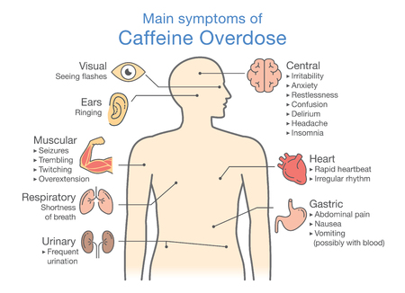 Belangrijkste symptomen van overdosis cafeïne. Illustratie over schema voor gezondheidscontrole. Vector Illustratie