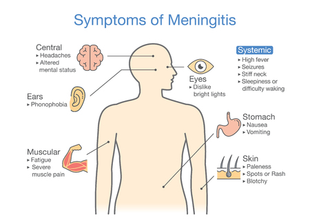 bacterial meningitis: Symptoms of Meningitis patient. Diagram to showing signs of disease.