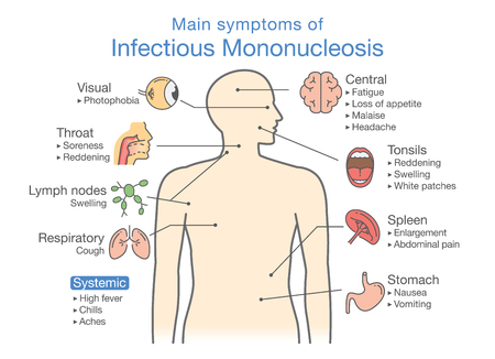 Symptoms of Infectious Mononucleosis disease. Diagram for diagnose patient of doctor.