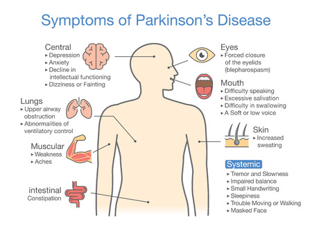 Illustration and medical diagram of Parkinsons disease symptoms and signs Illustration