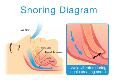 Anatomy of human upper airway while sleeping and snoring Illustration