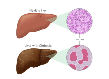 The difference of Healthy liver cells and Cirrhosis. Illustration about symptom of disease.
