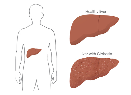 The Comparison between Healthy liver and Cirrhosis from drink alcohol. Illustration about symptom of patient.
