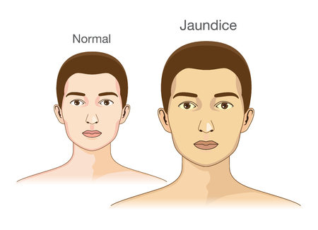 The Comparison between normal skin people and yellowing from Jaundice.