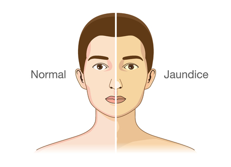 discolored: The Comparison between normal skin people and yellowing from Jaundice.